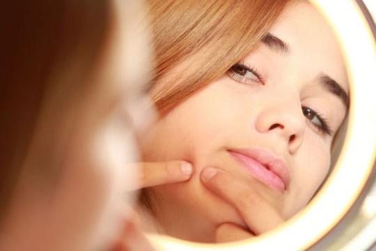 Comment lutter contre l'acné à l'aide de remèdes naturels ?